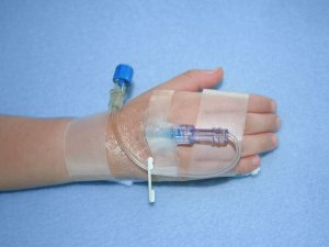 ivh-child-hand-iv-set-up-2